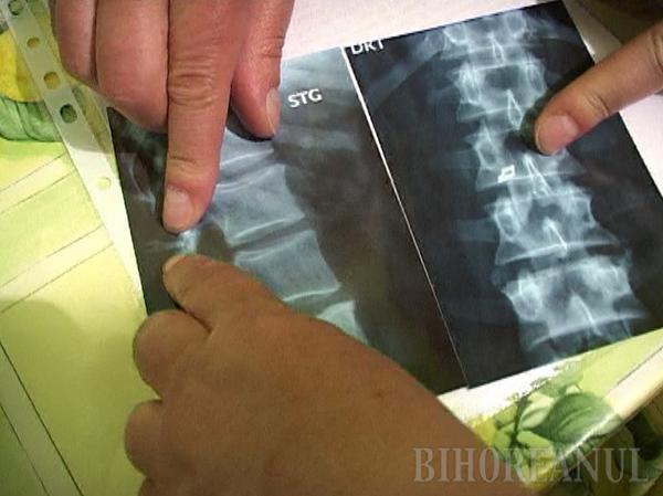 A stat 3 ani cu un bisturiu printre vertebre, iar acum cere socoteală pentru malpraxis