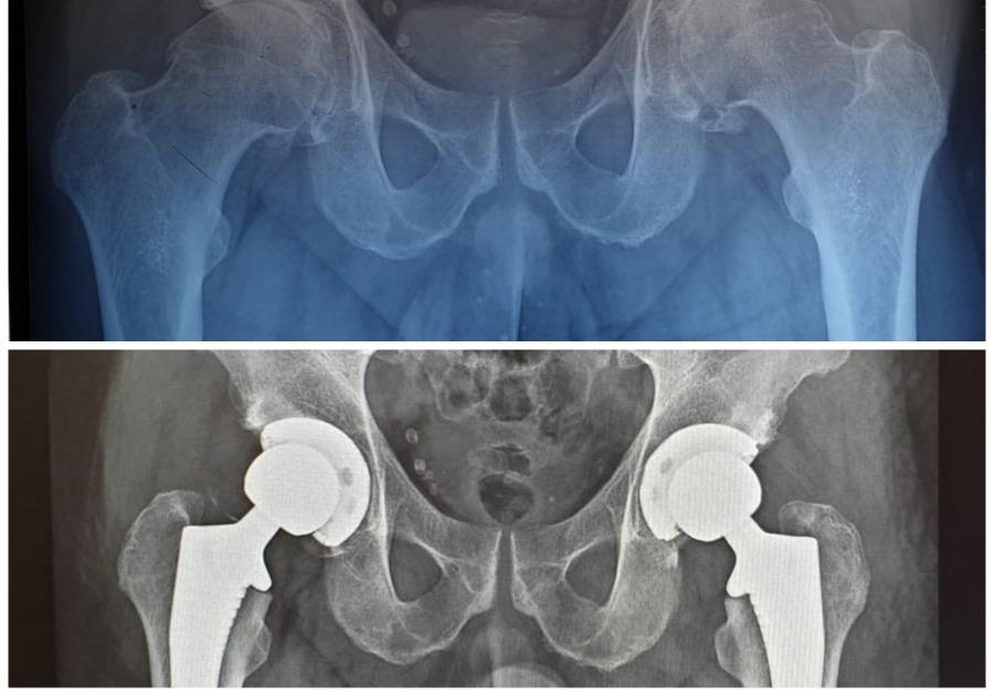 Radiografie pacient cu coxartroză - înainte și după operație